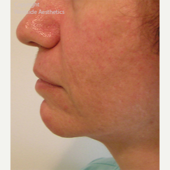 Radiesse Chin Enhancement after 2972565