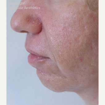 Radiesse Chin Enhancement before 2972565