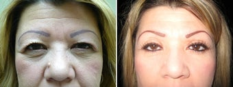Cosmetic eyelid surgery before 128412