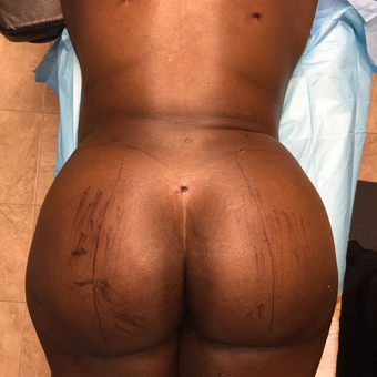 25-34 year old woman treated with Smart Lipo after 3286830