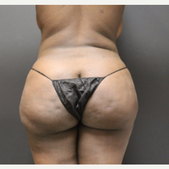 25-34 year old woman treated with Smart Lipo before 3286830