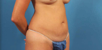 35-44 year old woman treated with Liposuction before 3787288
