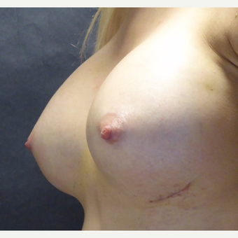 25-34 year old woman treated with Breast Implants after 3764902
