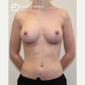 25-34 year old woman treated with Breast Augmentation after 3137824