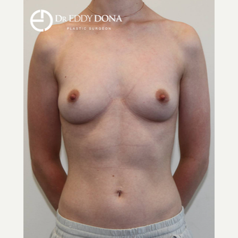 25-34 year old woman treated with Breast Augmentation before 3137824