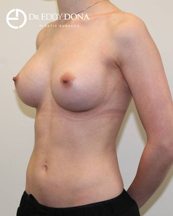 25-34 year old woman treated with Breast Augmentation 3137824