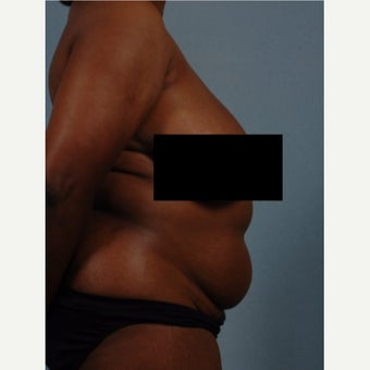 35-44 year old woman treated with Vaser Liposuction before 2479559