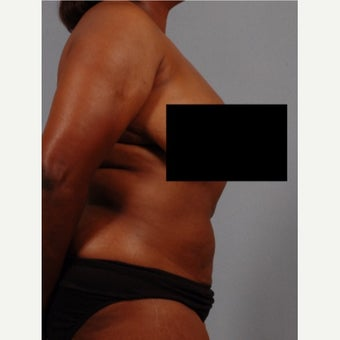 35-44 year old woman treated with Vaser Liposuction after 2479559