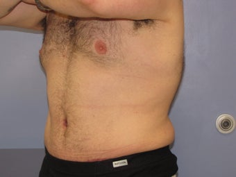 Male Tummy Tuck after 706264
