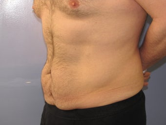 Male Tummy Tuck before 706264