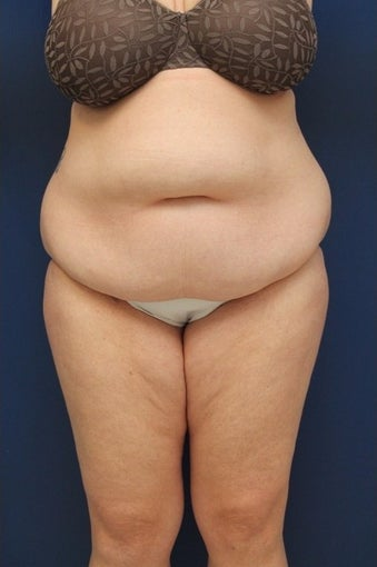 44 year old woman treated with Body Lift