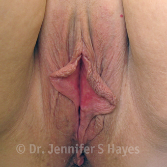45-54 year old woman treated with Labiaplasty before 3459456
