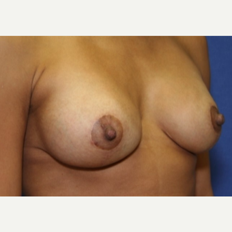 38 year old woman with Breast Augmentation after 3103911