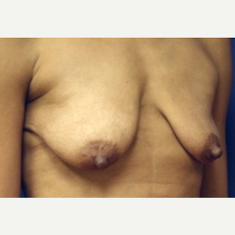 38 year old woman with Breast Augmentation before 3103911