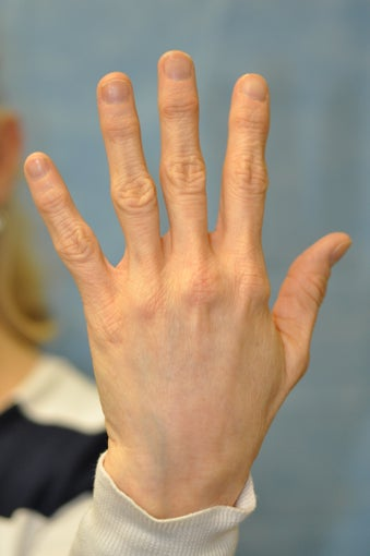 56 Year Old Female Treated for Unacceptable Cosmetic Appearance of Hands after 1012736
