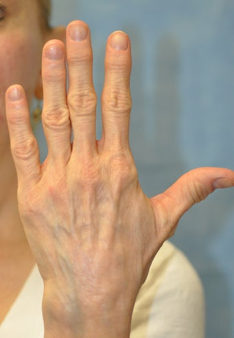 56 Year Old Female Treated for Unacceptable Cosmetic Appearance of Hands before 1012736