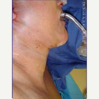 55-64 year old woman treated with Facelift Revision after 2289383