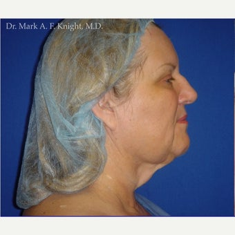 55-64 year old woman treated with Facelift Revision before 2289383