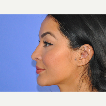 35-44 year old woman treated with Rhinoplasty after 3219689