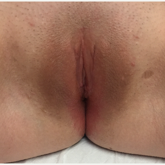 18-24 year old woman treated with Labiaplasty after 3079815