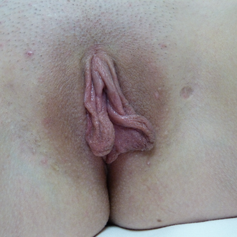 18-24 year old woman treated with Labiaplasty before 3079815