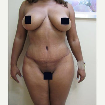 35-44 year old woman treated with Tummy Tuck after 1870298