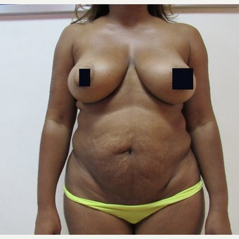 35-44 year old woman treated with Tummy Tuck before 1870298