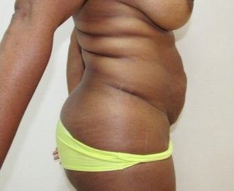 35-44 year old woman treated with Tummy Tuck 1870298