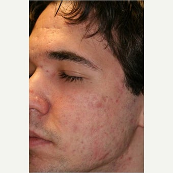 18- 24 year old man treated for Acne Scars with Fraxel DUAL after 2527680