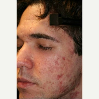 18- 24 year old man treated for Acne Scars with Fraxel DUAL before 2527680