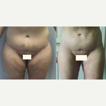 35-44 year old woman treated with Thigh Lift before 3442523