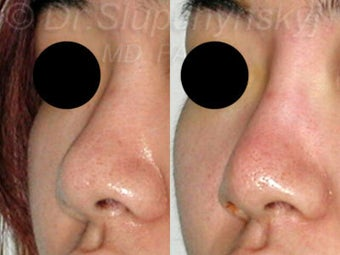 20 Year Old Non-Surgical Rhinoplasty with Radiesse 1384786