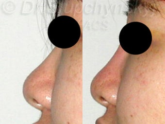 20 Year Old Non-Surgical Rhinoplasty with Radiesse
