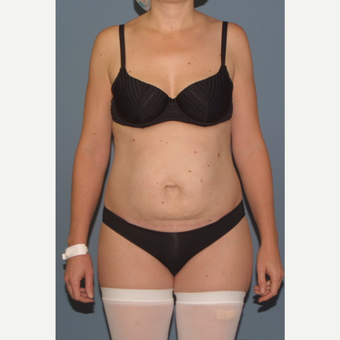 35-44 year old woman treated with Tummy Tuck before 3558323