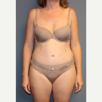 35-44 year old woman treated with Tummy Tuck after 3558323