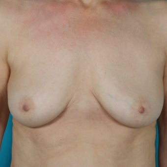 Breast Implant Removal, 64 Year Old Patient after 1603693