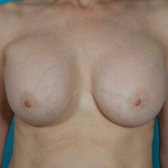 Breast Implant Removal, 64 Year Old Patient before 1603693