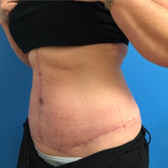35-44 year old woman treated with tummy tuck after 2213902