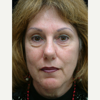 58 year old woman treated with Facelift (Brow, Cheeks, Neck Lifts and Lower Eyes) before 3201893