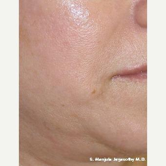 Injectable Kenalog® after 1615877