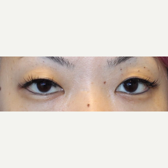 25-34 year old woman treated with Asian Eyelid Surgery before 3300340