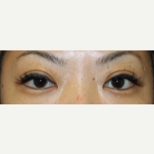 25-34 year old woman treated with Asian Eyelid Surgery after 3300340