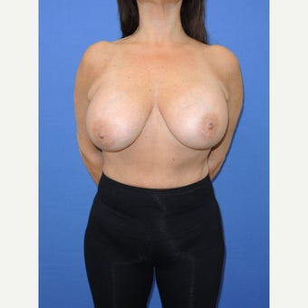 45-54 year old woman treated with Breast Implant Removal before 2256822