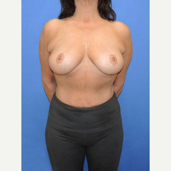 45-54 year old woman treated with Breast Implant Removal after 2256822