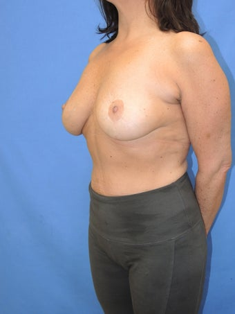 45-54 year old woman treated with Breast Implant Removal 2256822