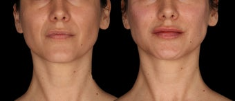 34 Year Old Female Treated for Lip Augmentation and  Nasolabial folds before 1367261