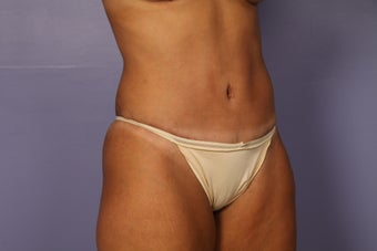 Tummy tuck and liposuction after 687598