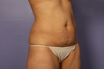 Tummy tuck and liposuction before 687598