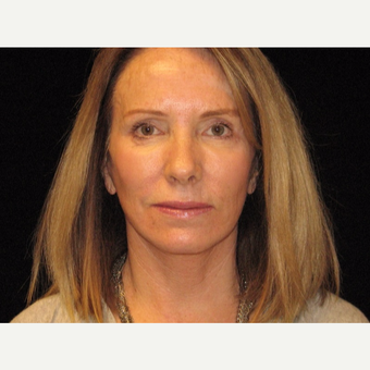 55-64 year old woman treated with Facelift after 3508858
