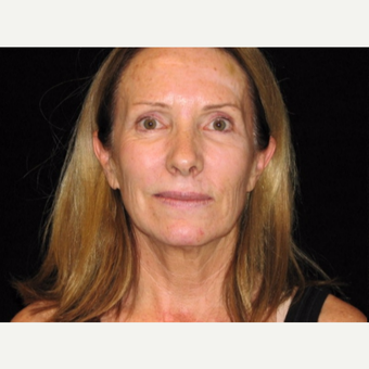 55-64 year old woman treated with Facelift before 3508858